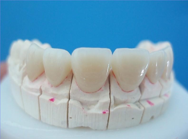 Керамические зубы как они сделаны