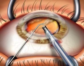 Risk of falls increases between catarAct surgeries