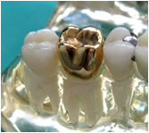 metal dental crowns in India