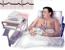 low cost cardiac pacemakers India