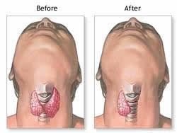 thyroidectomy surgery India