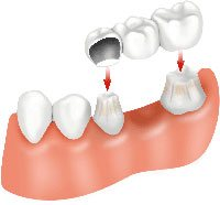 Dental bridges surgery in india