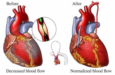 Top cardiac surgery cost in india benefit indianhealthguru cardiac surgery india low cost benefits ccuart Images
