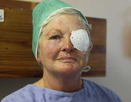 Experience Of Getting Cataract Surgery Done In India