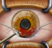 eye surgery India low cost benefits